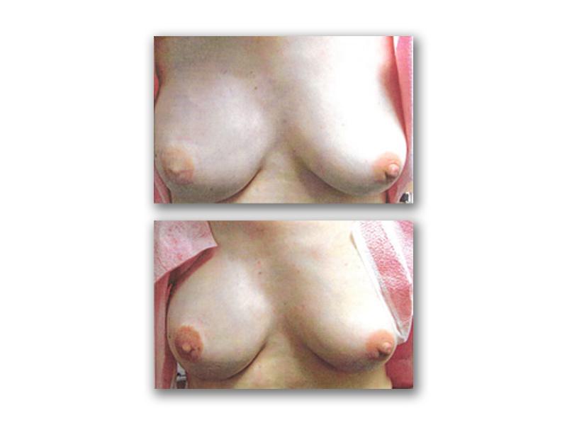 Procedure Type: Areola Complex