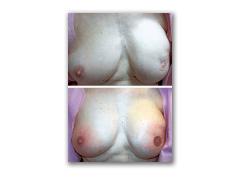 Procedure Type: Areola Complex