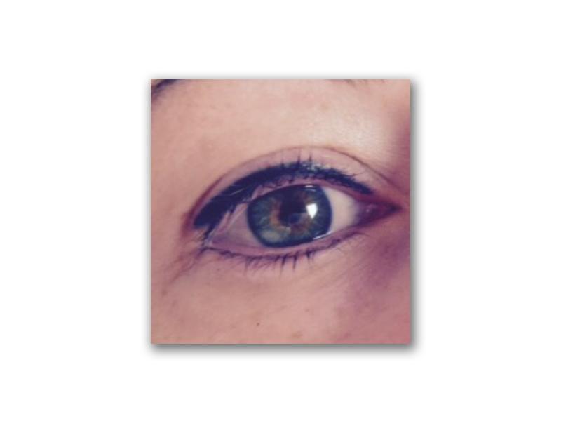 Procedure Type: Eyeliner