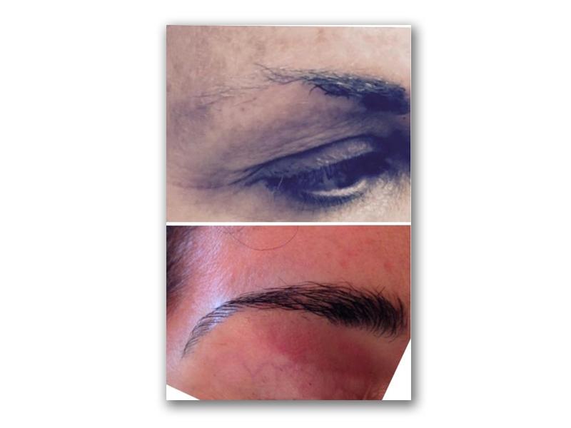 Procedure Type: Eyebrows