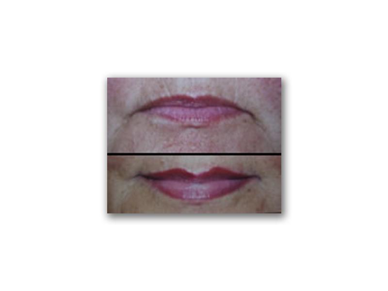Procedure Type: Lips