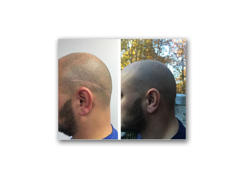 Procedure Type: Scalp Micro Pigmentation (SMP)